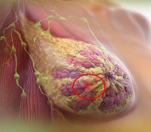 شیمی درمانی در سرطان سینه