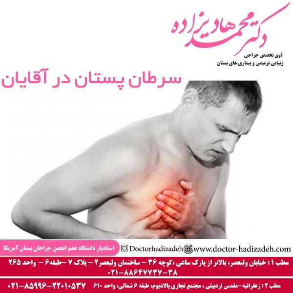 سرطان پستان در آقایان