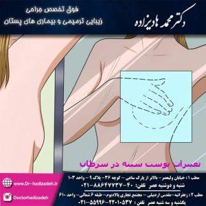 تغییرات پوست سینه در سرطان