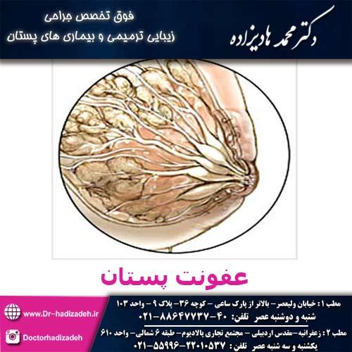 عفونت-پستان