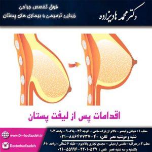 اقدامات قبل از لیفت پستان