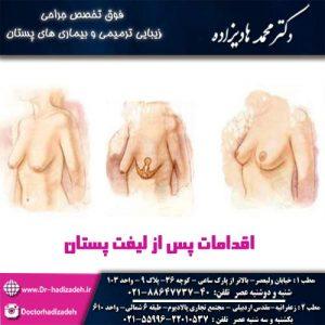اقدامات پس از لیفت پستان