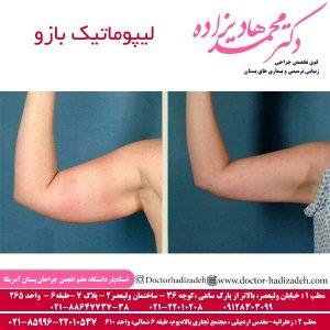 لیپوماتیک بازو 300x300 - لیپوماتیک بازو