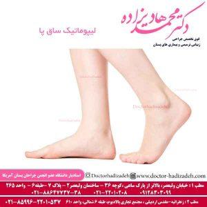 لیپوماتیک ساق پا