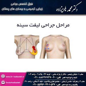 مراحل جراحی لیفت سینه