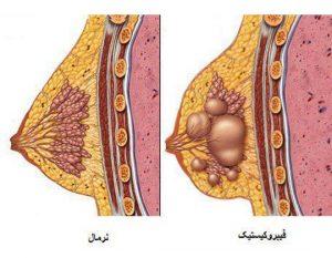 بیماری های خوش خیم سینه 300x233 - عمل پروتز سینه