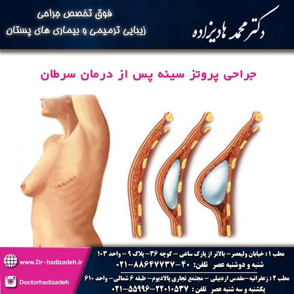 جراحی پروتز سینه پس از درمان سرطان