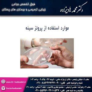 موارد استفاده از پروتز سینه