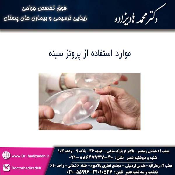 موراد استفاده از پروتز سینه