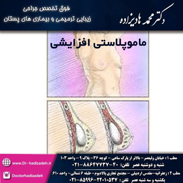 ماموپلاستی افزایشی