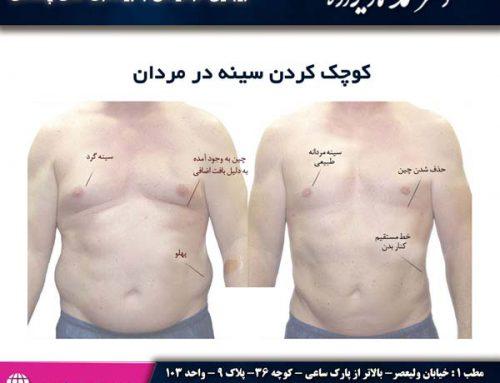 کوچک کردن سینه در مردان