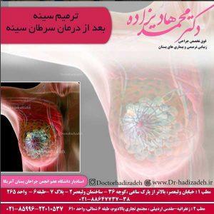 ترمیم سینه بعد از درمان سرطان سینه