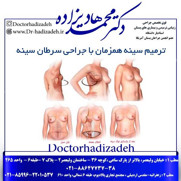 ترمیم سینه همزمان با جراحی سرطان سینه