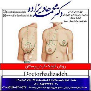 روش کوچک کردن پستان
