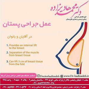 عمل جراحی پستان
