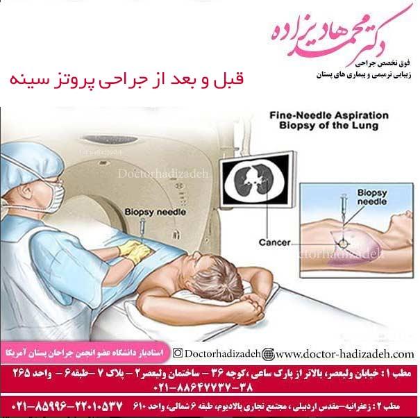 قبل و بعد از جراحی پروتز سینه