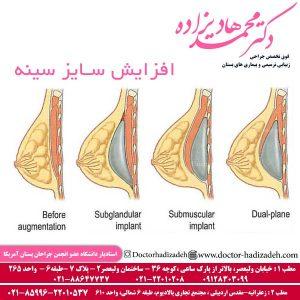افزایش سایز سینه 2