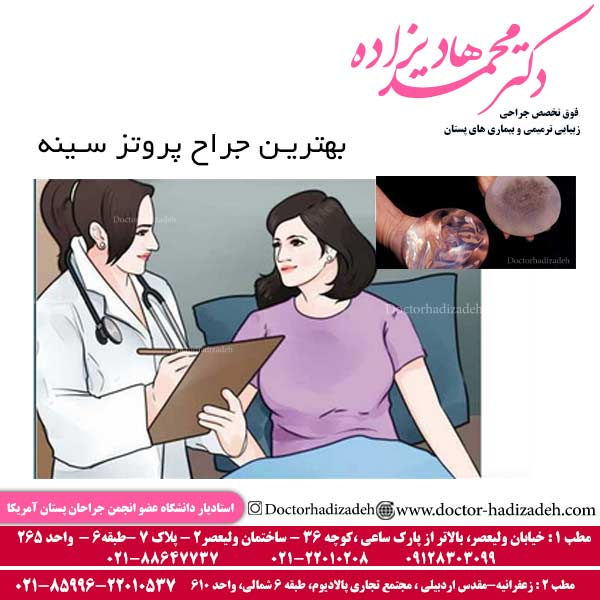 بهترین جراح پروتز سینه تهران