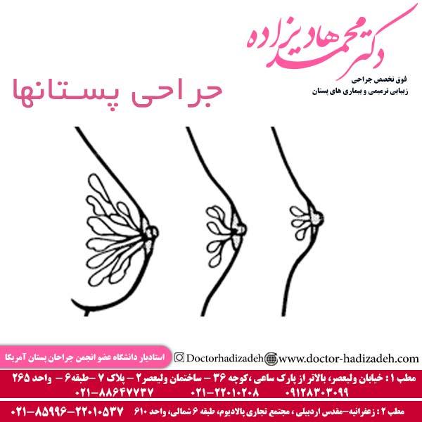 جراحی پستانها