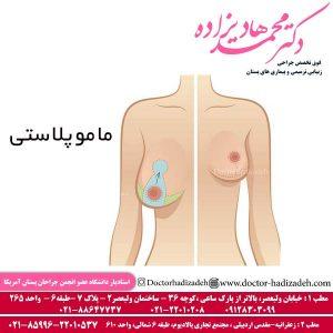 ماموپلاستی 4