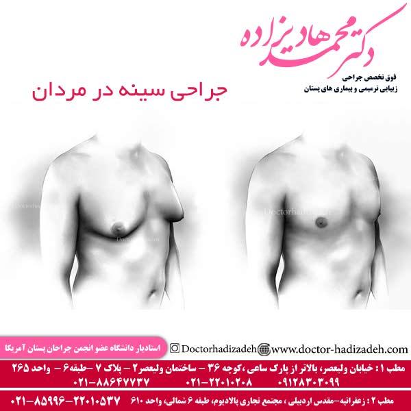 جراحي سينه در مردان