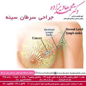 جراحی سرطان سینه